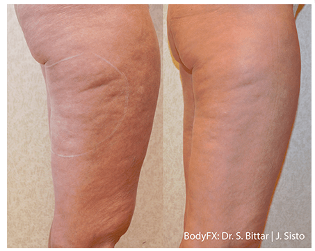 Before and after Fractora thighs
