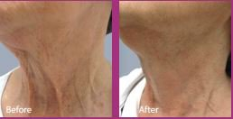 Before and After Fractora Treatment Neck