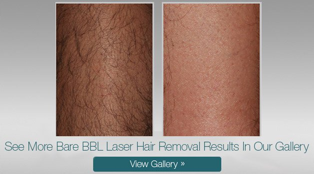 Bare BBL Laser Hair Removal treatment before and after