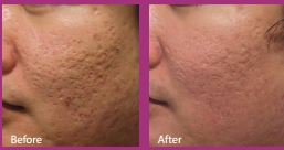 Before-After Face Fractora at Island Plastic Surgery