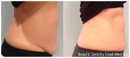 Before and after BodyFX tummy