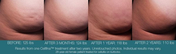 Cellfina Cellulite Treatment for Women in NY