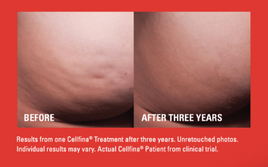 Cellfina Treatment Result