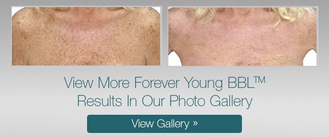 Forever Young BBL treatment before and after
